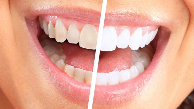 Here's Why You Should Whiten Your Teeth!