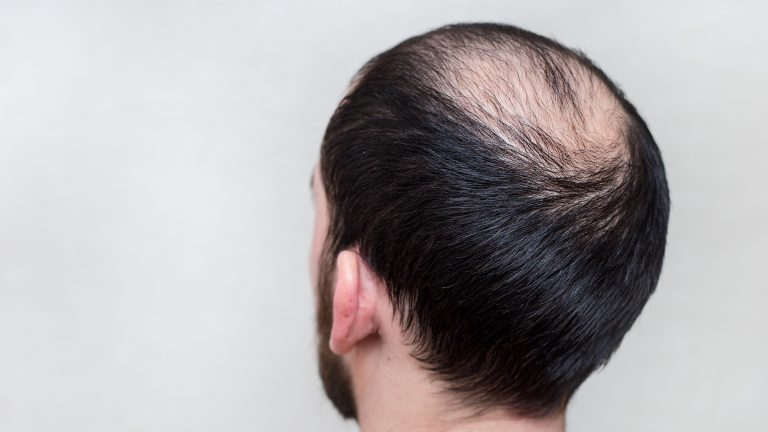 Hair Loss Stress Triggers – Remove the stress